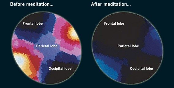 how meditation affects your brain - beta waves