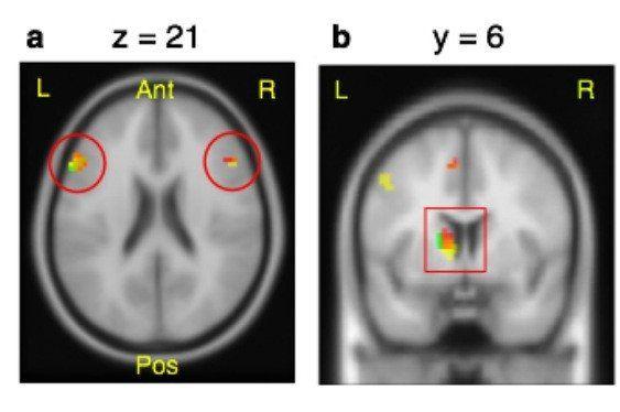curiosity in the brain