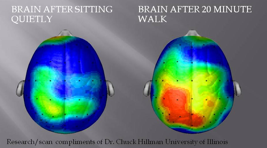 brain scan walk